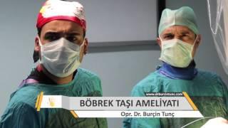 Download Böbrek Taşı Ameliyatı Izle Video