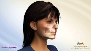 Download Different Types of Jaw Surgery - Surgical Orthodontics Video