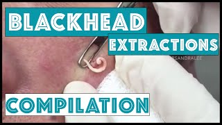 Download Long and Satisfying Blackhead Extractions: A Dr Pimple Popper Compilation Video