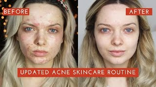 Download UPDATED ACNE SKINCARE ROUTINE: How I cleared my Acne // MyPaleSkin Video