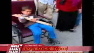 Download ELİNE BATAN ÇİVİLİ TAHTA İLE HASTANEYE GETİRİLDİ Video