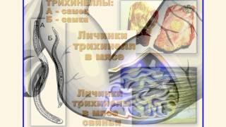 Download гельминтозы и их профилактика Video