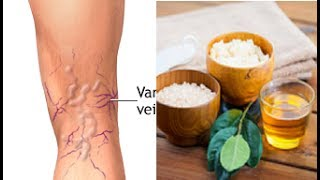 Download Try This Magic Remedies To Remove Varicose Veins Naturally Video