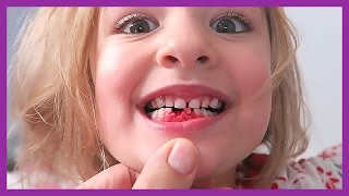 Download SHE PULLED HER FIRST TOOTH!! Video