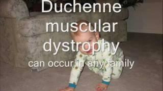 Download Duchenne Muscular Dystrophy.wmv Video