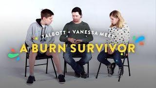 Download Kids Meet A Burn Survivor (Talbott & Vanessa) | Kids Meet | HiHo Kids Video