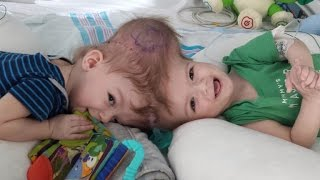 Download 13-Month-Old Twin Boys Born Conjoined at Head Are Successfully Separated Video