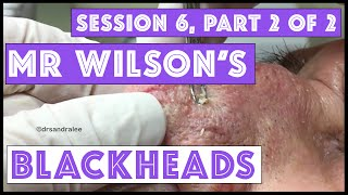 Download Mr Wilson's Blackhead Extractions: Session 6, Part 2 of 2 Video