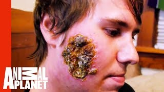 Download Huge Open Wound on a Young Man's Face | Monsters Inside Me Video