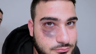 Download GOT BEAT UP BY HATERS!! *Black Eye* Video