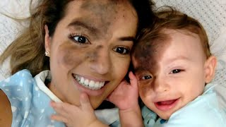 Download Mom Uses Makeup to Match Son's Facial Birthmark Video