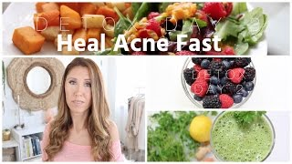 Download What I Eat To Heal Acne Fast Video