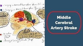 Download Middle Cerebral Artery Stroke Video