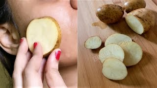 Download i rub Potato on my face & it removed my Dark spots and hyperpigmentation in 30 days Video