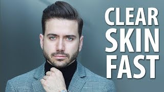 Download HOW TO GET CLEAR SKIN FAST | Men's Skincare Routine | ALEX COSTA Video