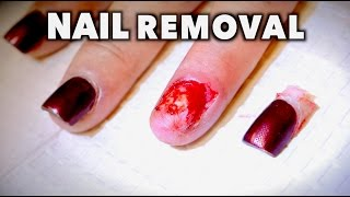 Download REMOVING MY WIFES FINGERNAIL...AGAIN! (Yikes) | Dr. Paul Video