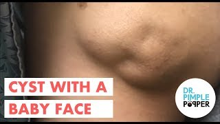 Download An Amazing Baby Faced Cyst! Video