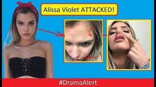 Download Alissa Violet ATTACKED! (FOOTAGE) #DramaAlert FaZe Banks BREAKS Hand Defending Her! Video