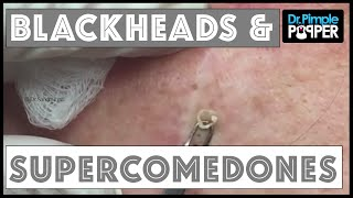 Download Blackhead Supercomedone Extractions: Dr Pimple Popper Video
