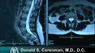 Download How to Read a MRI of the Normal Lumbar Spine | Lower-Back | Vail Spine Specialist Video