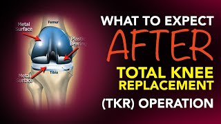 Download What To Expect After A Total Knee Replacement (TKR) Operation Video
