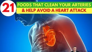 Download 🍏🍉21 Foods That Are Clinically Proven To Clean Your Arteries & Help Avoid A Heart Attack or Stroke🍅🥑 Video