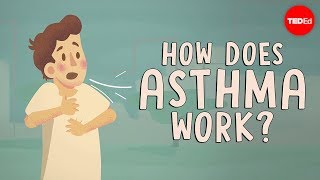 Download How does asthma work? - Christopher E. Gaw Video