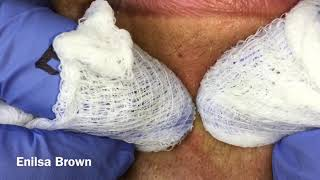 Download Daryl Follow Up Acne Treatment/ Filament Video