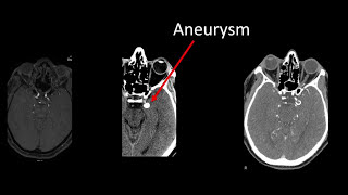 Download PCOM Aneurysm Clipping Video - Brigham and Women's Hospital Video