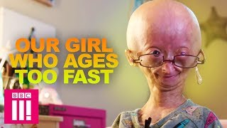 Download Our Girl Who Ages Too Fast: Adalia Rose | Living Differently Video