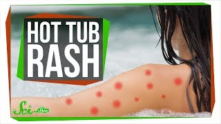 Download Can Hot Tubs Make You Sick? Video