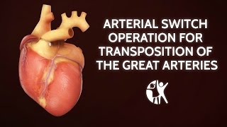 Download Arterial Switch Operation for Transposition of the Great Arteries | Cincinnati Children's Video