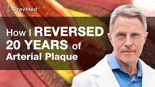 Download How I Reversed 20 years of Arterial Plaque: Heart Attack Proofing? Video