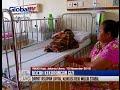Download Ahok Batal Beri Bantuan Saat Lihat Nenek Reki, Bocah Gizi Buruk, Kondisinya Sehat - BIS 11/11 Video