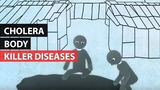 Download KILLER DISEASES | How the Body Reacts to Cholera Video
