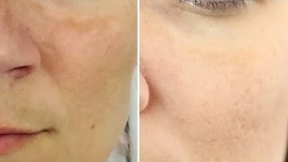 Download 8 Natural Home Remedies to Clear Melasma Video