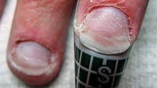 Download NAIL TUTORIAL HOW TO FIX NAIL PLATE💅 MANICURE BEAUTY NAIL AND NEW NAIL ART FOR GEL NAILS AT HOME Video