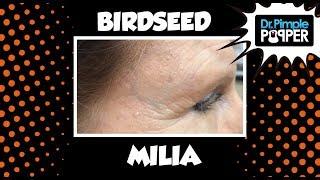 Download Birdseed Milia Video