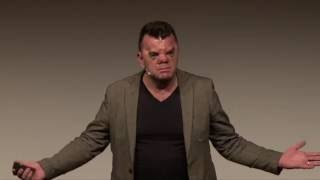 Download Own your face | Robert Hoge | TEDxSouthBank Video