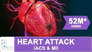 Download HEART ATTACK (ACS & MI) Video
