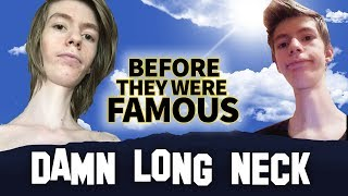 Download DAMN LONG NECK | Before They Were Famous | INSTAGRAM STAR Video