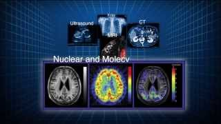Download The Value of Nuclear Medicine and Molecular Imaging Video