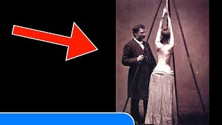 Download 25 VINTAGE MEDICAL PHOTOS That Show How Patients Were Treated Before Video