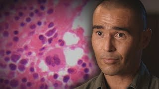 Download Vitamin C for cancer? 'Miracle man' Anton Kuraia's highly controversial treatment Video