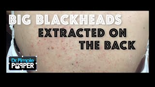 Download Re-introduction to Big Blackheads on the Back Video