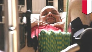 Download Miracle recovery: paralyzed man walks again after receiving breakthrough spinal cord surgery Video
