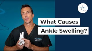 Download What causes Ankle Swelling? - Houston Foot and Ankle Surgeon - Dr Robert J Moore III Blog Video