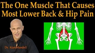 Download The One Muscle That Causes Most Lower Back & Hip Pain - Dr Mandell Live Stream Video