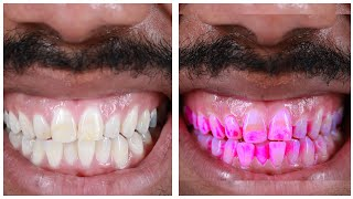 Download People See How Gross Their Teeth Really Are Video