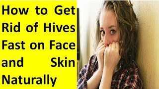 Download How to Get Rid of Hives Fast on Face Naturally Video